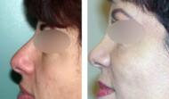 rhinoplastie-résultat 14