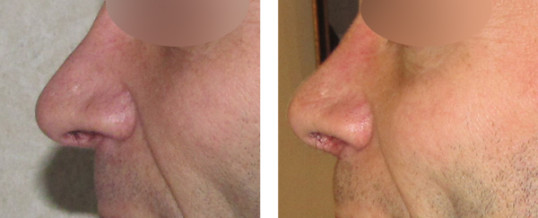 rhinoplastie-résultat 20
