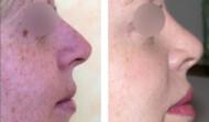 rhinoplastie-résultat  6