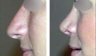 rhinoplastie-résultat 7