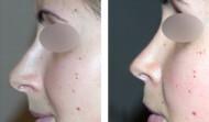 rhinoplastie-résultat 9