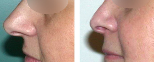 rhinoplastie-résultat 16