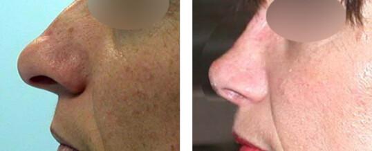 rhinoplastie-résultat 17