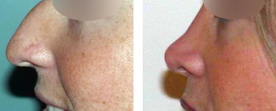 rhinoplastie-résultat 18