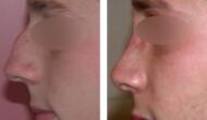 rhinoplastie-résultat 19