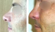 rhinoplastie-résultat 5