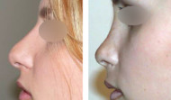 rhinoplastie-résultat 12